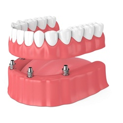 Animated All-on-4 dental implant denture