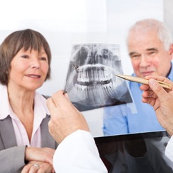 A dentist showing an X-ray of dental implant supported replacement tooth to an older couple