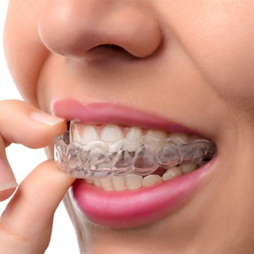 A woman with clear Invisalign aligners