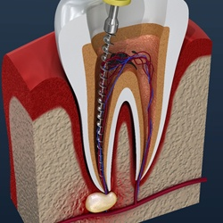 Animated root canal treatment