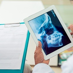 Digital x-rays of jaw joints on tablet computer