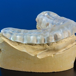 Model smile with occlusal splint for TMJ therapy