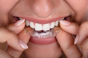 Woman inserting her clear aligners